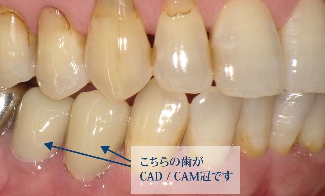CAD/CAMハイブリッドレジン冠
